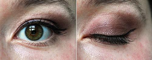 How To Heal A Black Eye - Everyday Health